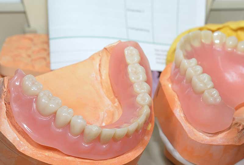 kelowna denturist near me